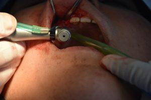 اسنان